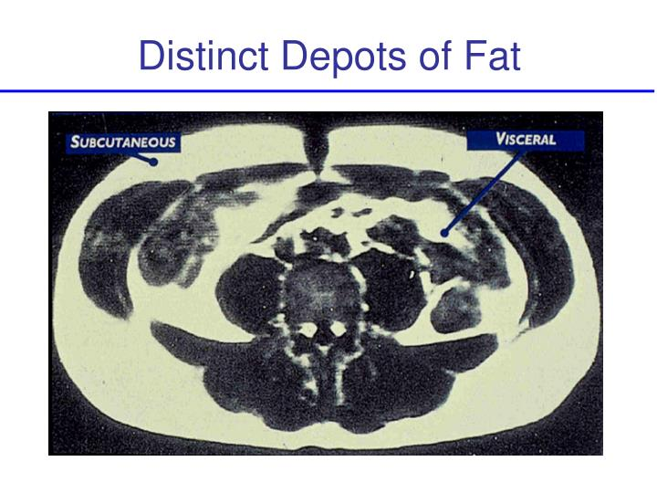 Distinct Depots of Fat