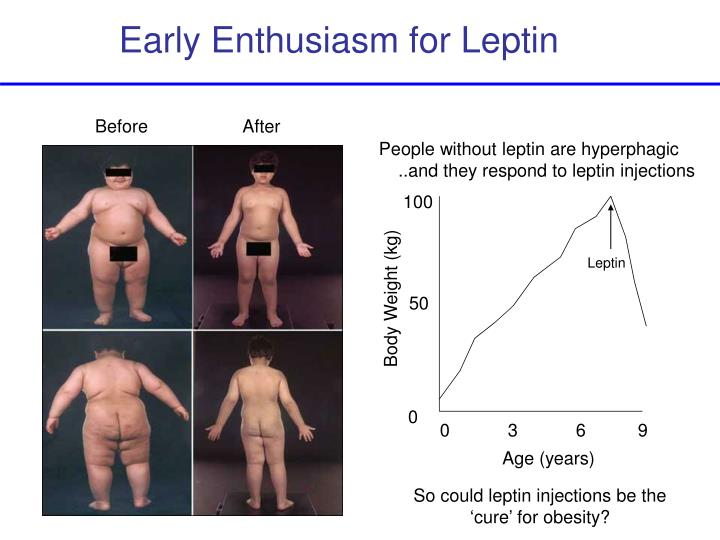 Early Enthusiasm for Leptin