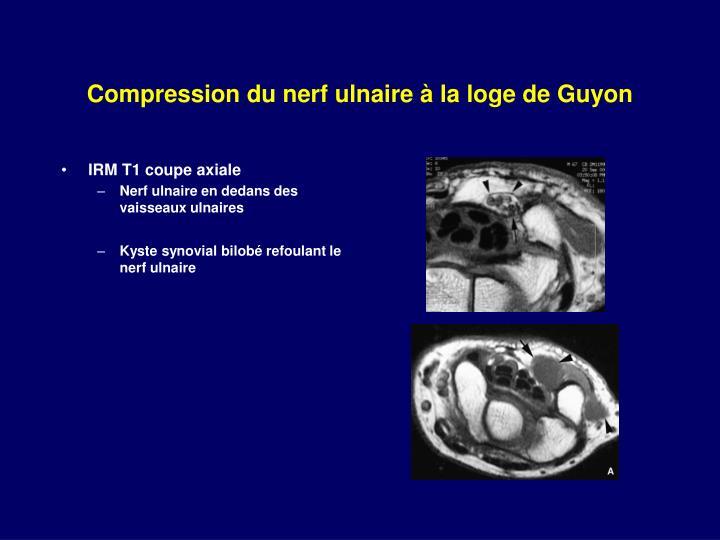 Compression du nerf ulnaire à la loge de Guyon