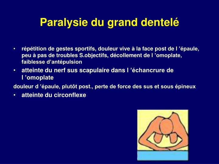 Paralysie du grand dentelé