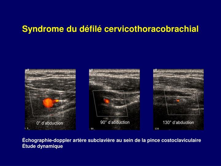 Syndrome du défilé cervicothoracobrachial