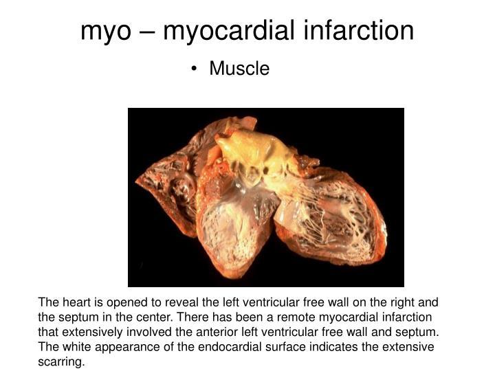Myo myocardial infarction