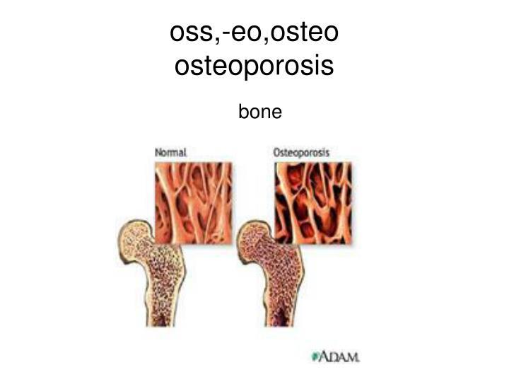 oss,-eo,osteo