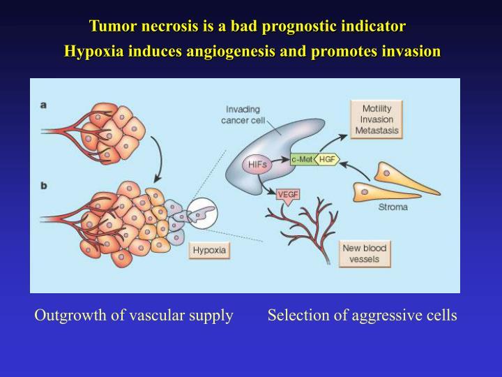 Tumor necrosis is a bad prognostic indicator