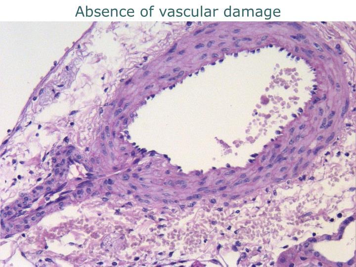 Absence of vascular damage