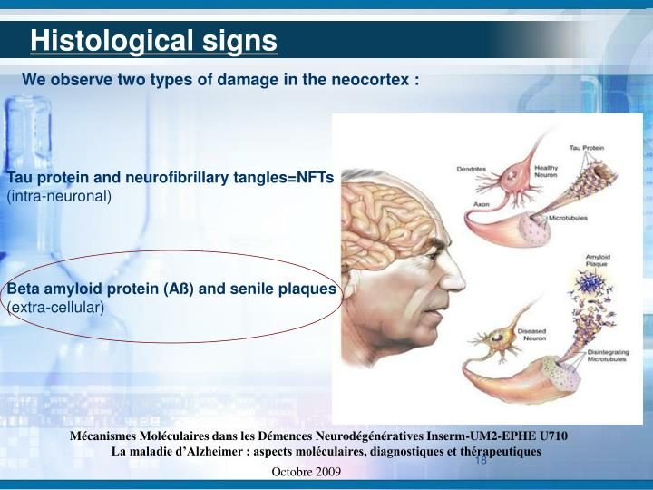 Histological signs