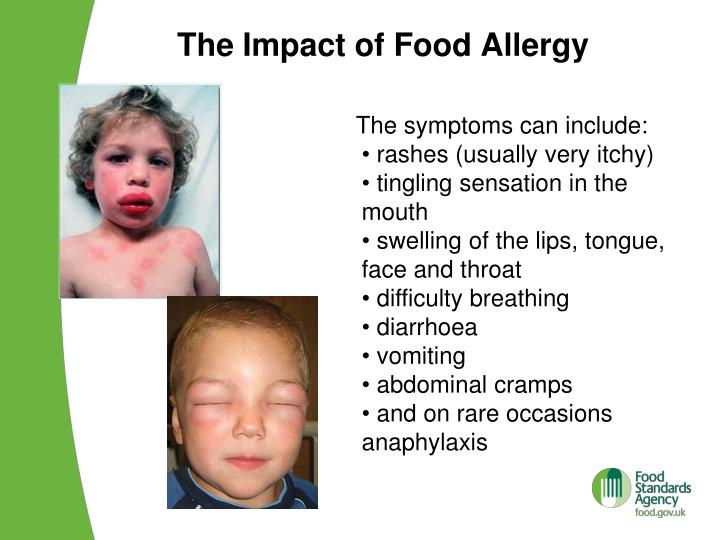 the impact of food allergy on Food allergies have a significant impact on your daily life in many ways it's important not only to find out how to get by without coming into contact with your food allergens but to get help, from a professional if necessary, to deal with the emotional issues that come along with your allergies.
