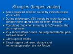 shingles herpes zoster