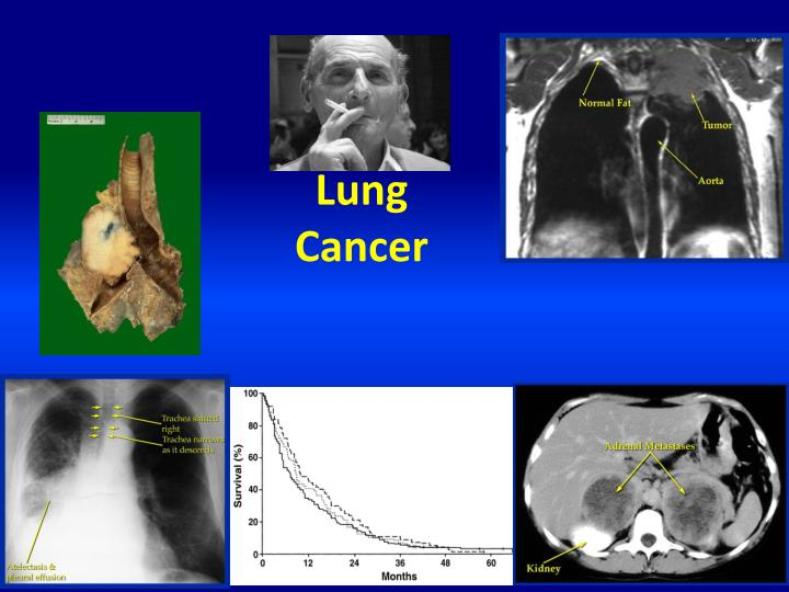 lung cancer n.