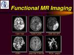 functional mr imaging