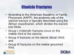 clavicle fractures1