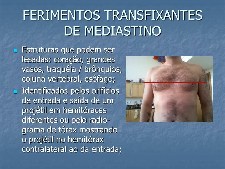 FERIMENTOS TRANSFIXANTES DE MEDIASTINO
