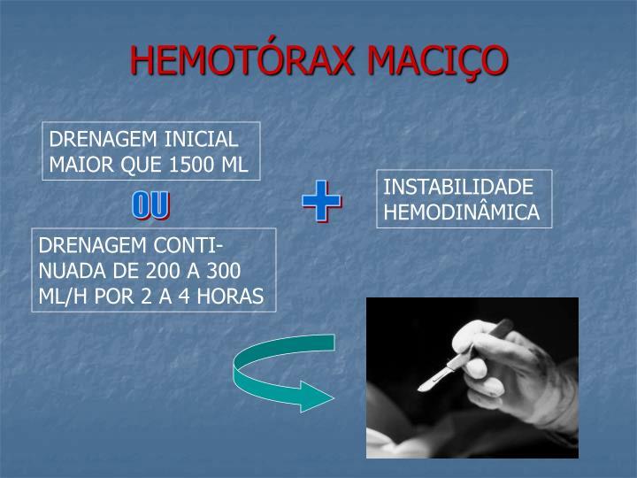 HEMOTÓRAX MACIÇO