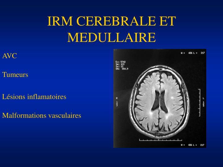IRM CEREBRALE ET MEDULLAIRE