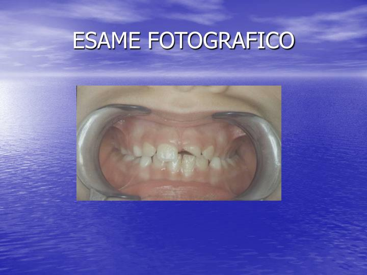 ESAME FOTOGRAFICO