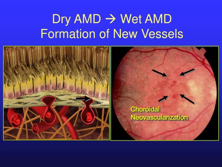 Dry AMD