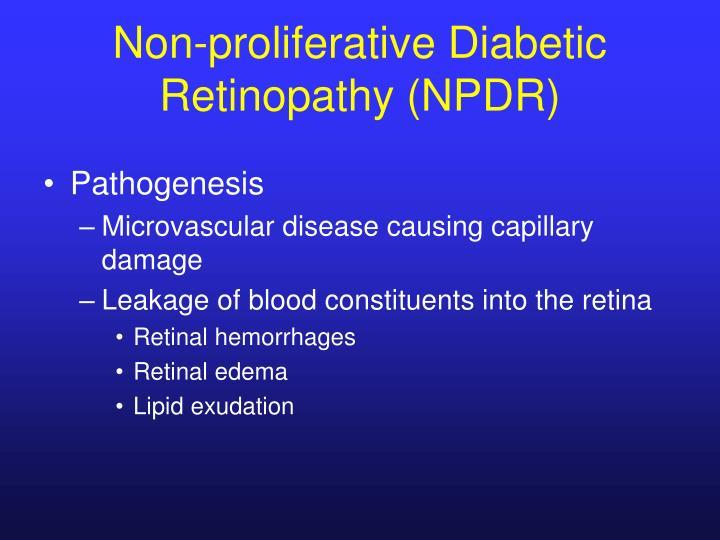Non-proliferative Diabetic Retinopathy (NPDR)