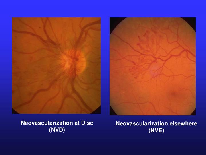 Neovascularization at Disc