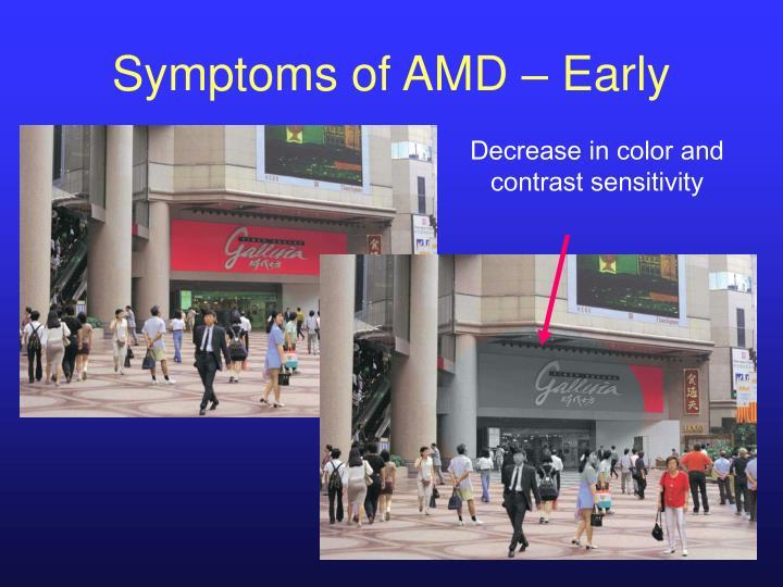 Symptoms of AMD – Early