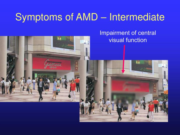 Symptoms of AMD – Intermediate