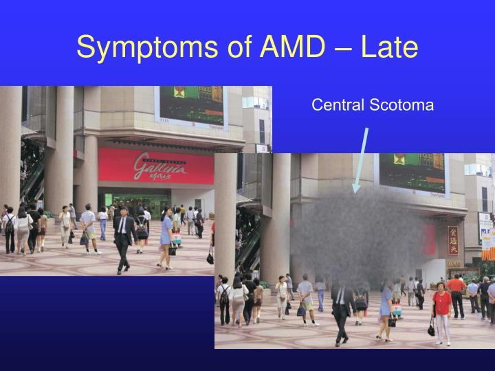 Symptoms of AMD – Late
