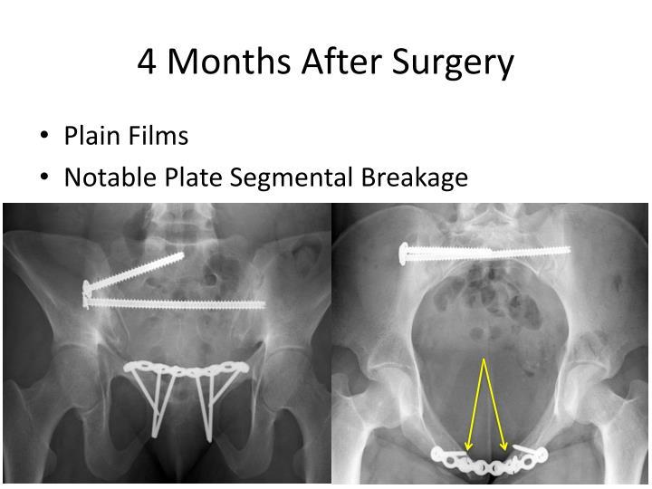 4 Months After Surgery