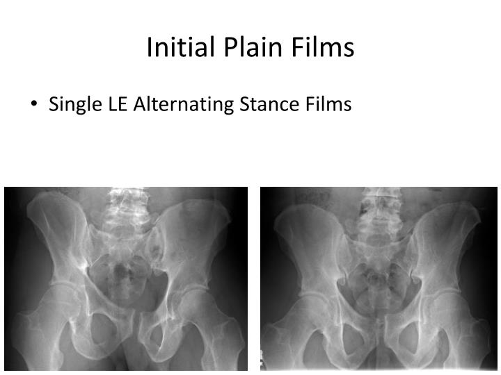 Initial Plain Films