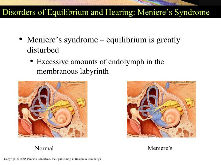 Disorders of Equilibrium and Hearing: Meniere's Syndrome