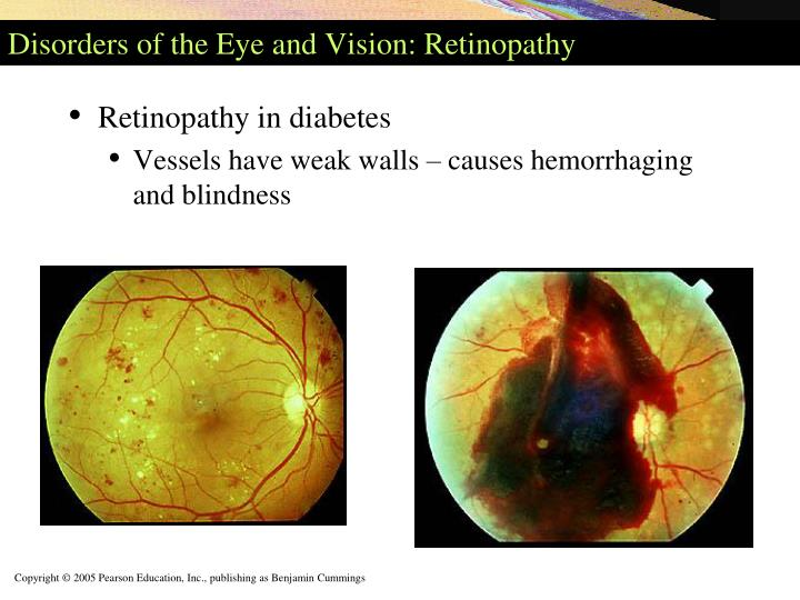 Disorders of the Eye and Vision: Retinopathy