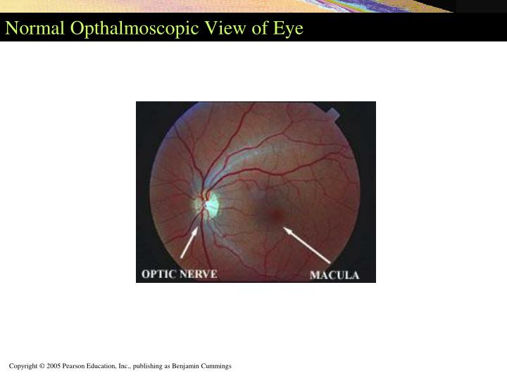 Normal Opthalmoscopic View of Eye