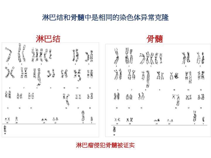 淋巴结和骨髓中是相同的染色体异常克隆