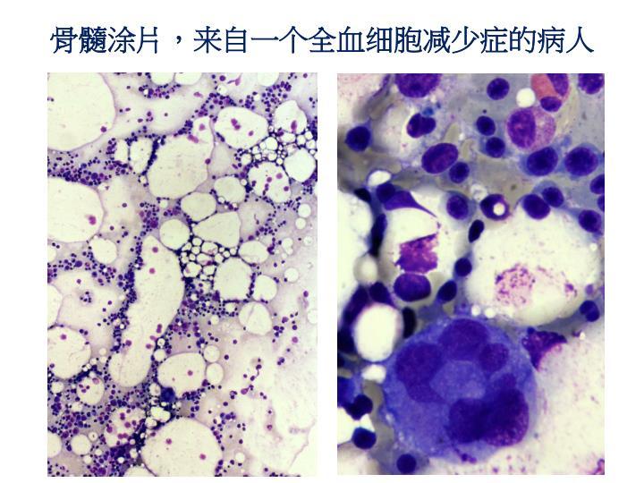 骨髓涂片,来自一个全血细胞减少症的病人