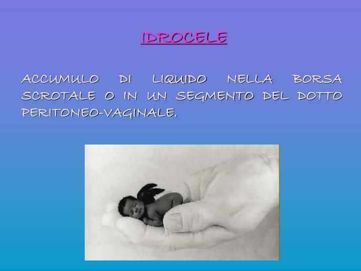 IDROCELE