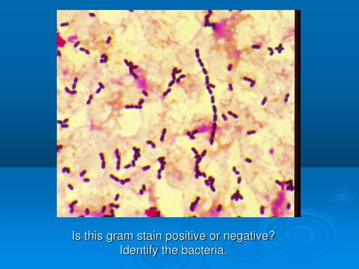Is this gram stain positive or negative?