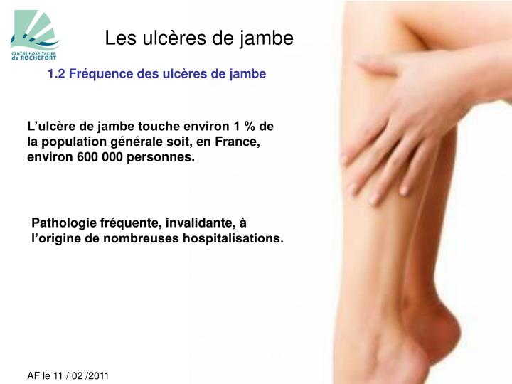 Les ulcères de jambe