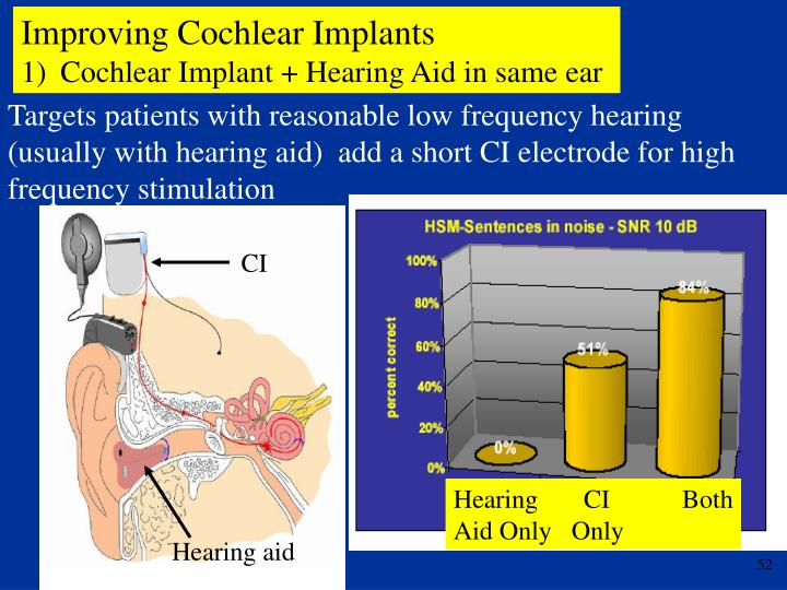 Improving Cochlear Implants