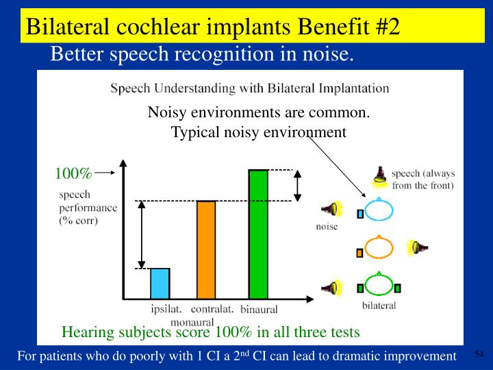 Bilateral cochlear implants Benefit #2