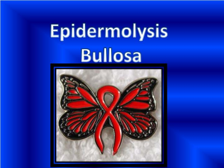 ppt - epidermolysis bullosa powerpoint presentation