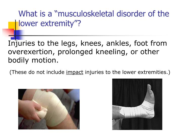 """What is a """"musculoskeletal disorder of the lower extremity""""?"""