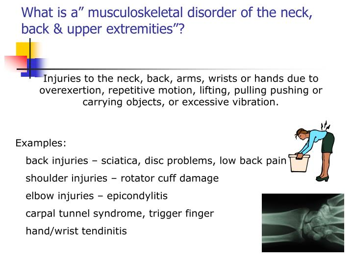 """What is a"""" musculoskeletal disorder of the neck, back & upper extremities""""?"""
