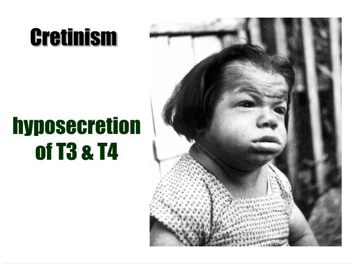 hyposecretion of T3 & T4
