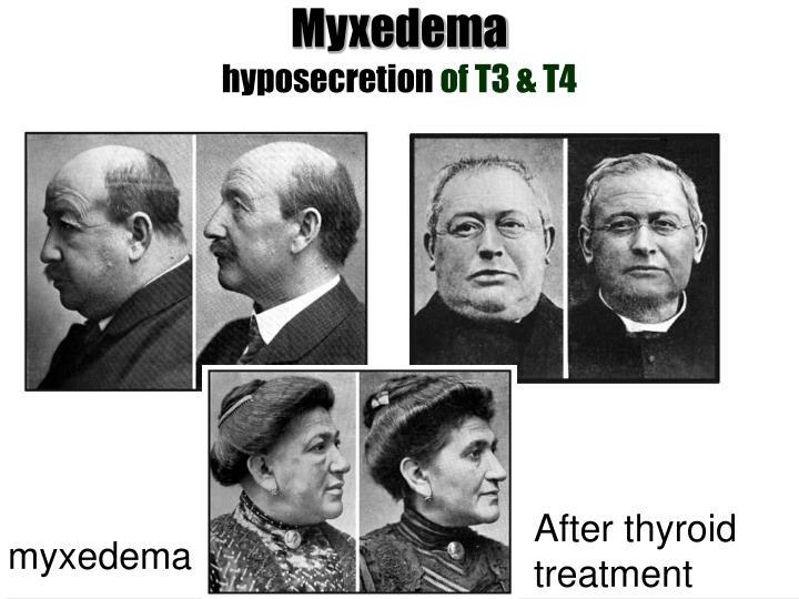 Myxedema