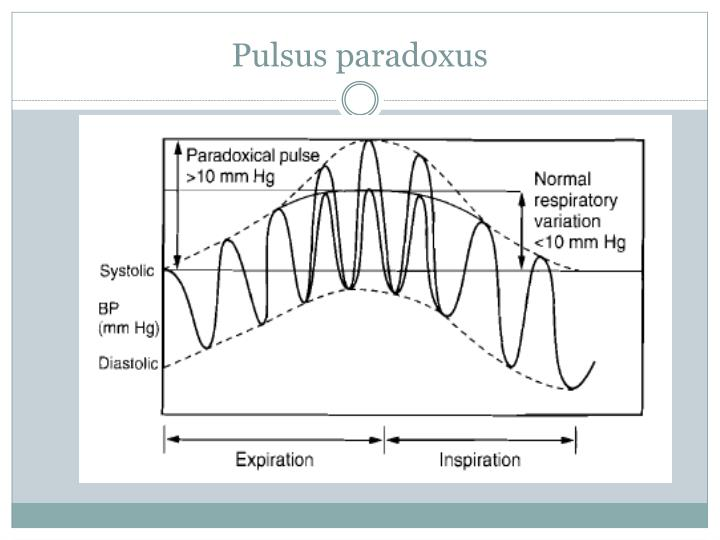 Paradoxical Pulse Meaning Kopermimarlik
