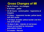 gross changes of mi