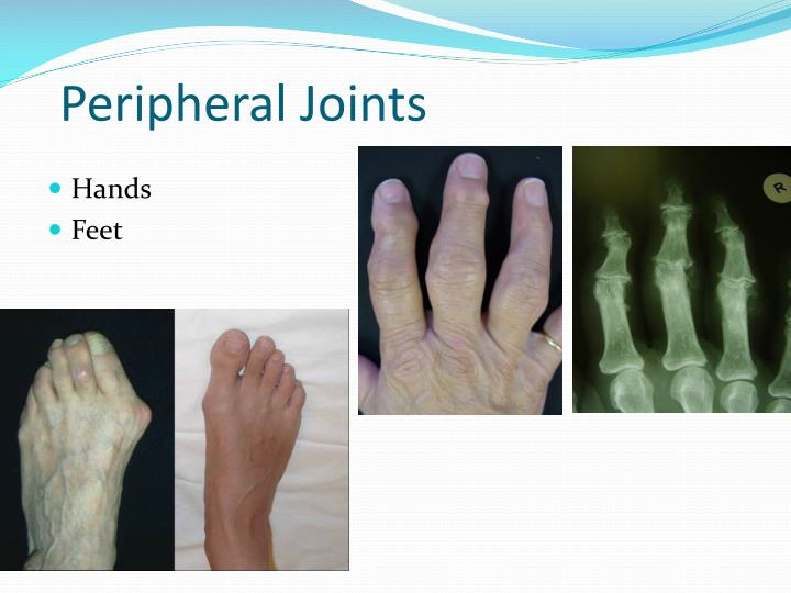 Peripheral Joints
