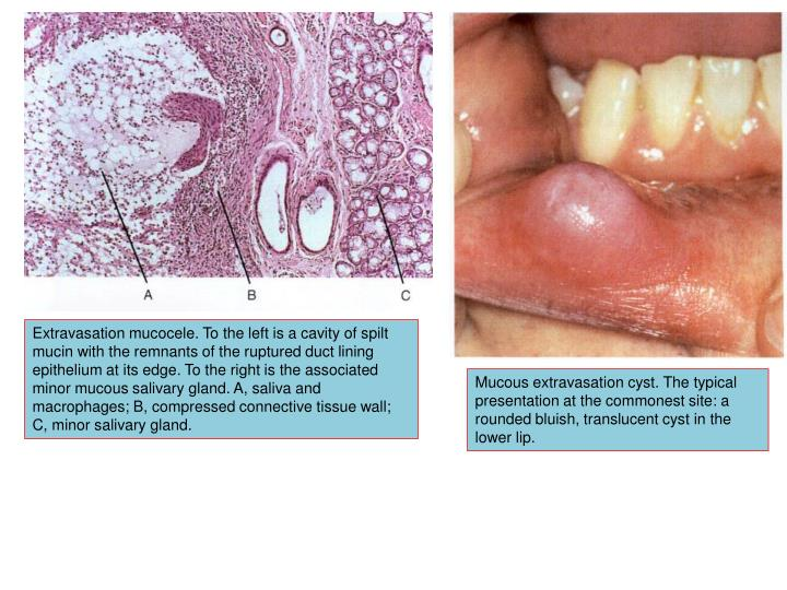 Extravasation mucocele. To the left is a cavity of spilt mucin with the remnants of the ruptured duct lining epithelium at its edge. To the right is the associated minor mucous salivary gland. A, saliva and macrophages; B, compressed connective tissue wall; C, minor salivary gland.
