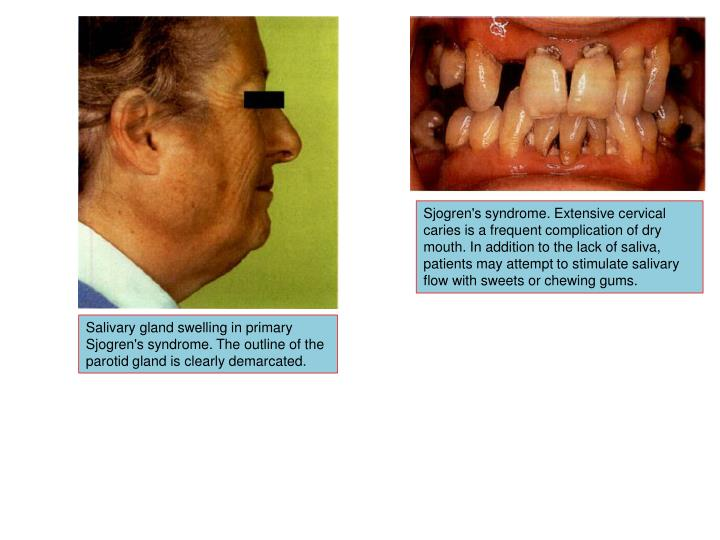 Sjogren's syndrome. Extensive cervical caries is a frequent complication of dry mouth. In addition to the lack of saliva, patients may attempt to stimulate salivary flow with sweets or chewing gums.