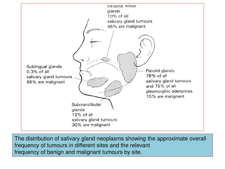 The distribution of salivary gland neoplasms showing the approximate overall frequency of tumours in different sites and the relevant