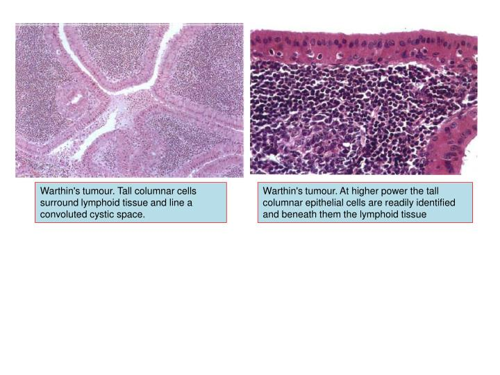 Warthin's tumour. Tall columnar cells surround lymphoid tissue and line a convoluted cystic space.