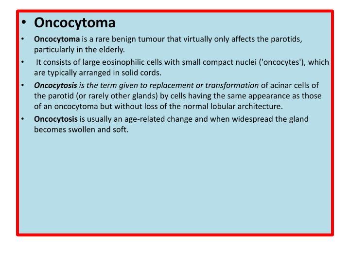 Oncocytoma